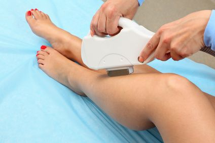 legs laser removal